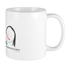 S10.97 Other Superficial Bite Mugs