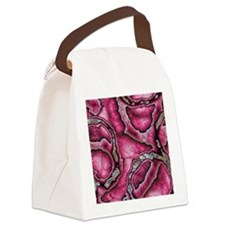 pink glimmer confusion Canvas Lunch Bag
