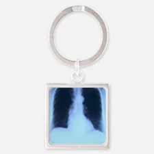 X-Ray Lungs Square Keychain