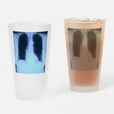 X-Ray Lungs Drinking Glass