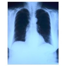 X-Ray Lungs Poster