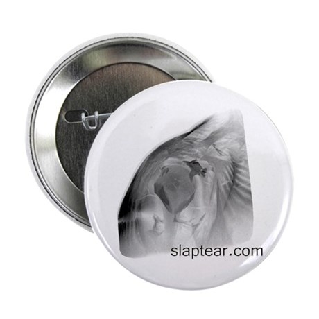slaptear MRI button
