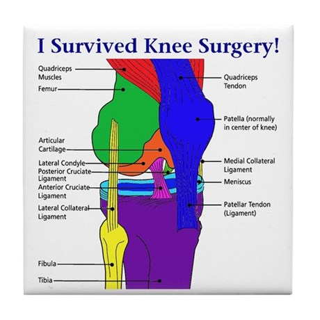 Knee Surgery Gift 12 Tile Coaster