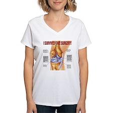 Knee Surgery Gift 1 Shirt
