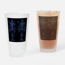 Funny Hip replacement surgery Drinking Glass