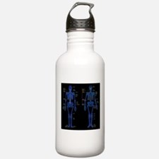 Hip replacement Water Bottle