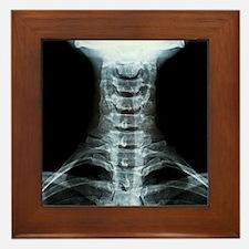 Digital X-Ray Art Framed Tile