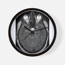 MRI Wall Clock