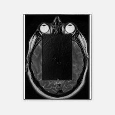 MRI Picture Frame