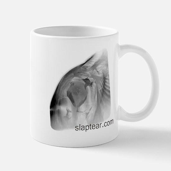 Unique Mri Mug