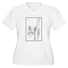 Funny Knee replacement T-Shirt