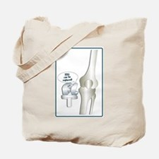 Cool Knee replacement Tote Bag