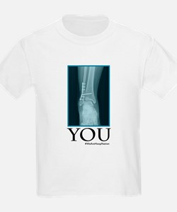 You - Broken Ankle X-Ray T-Shirt