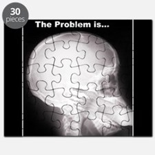 foot in mouth xray Puzzle