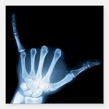 "Shaka Hand Sign X-ray AL Square Car Magnet 3"" x 3"""