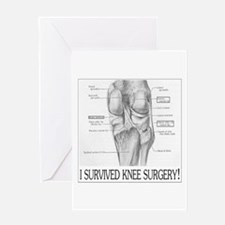 Knee Surgery Gift 8 Greeting Card