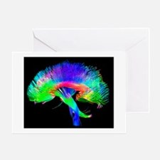 Brain pathways - Greeting Cards