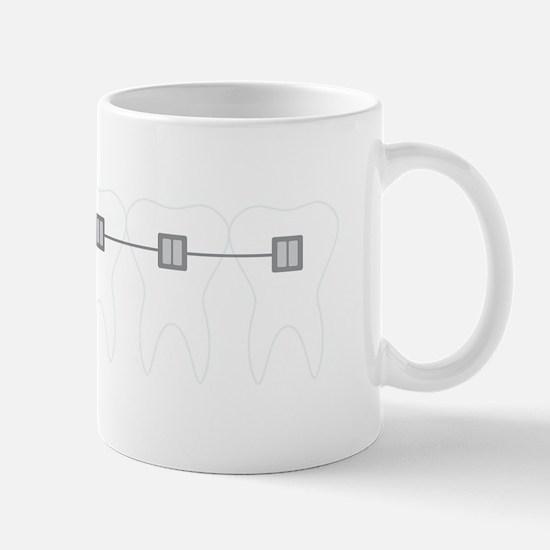 Orthodontist Braces Mugs