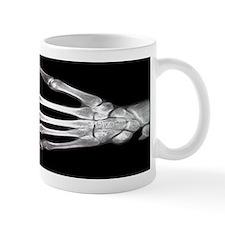 Hand X-Ray Small Mug