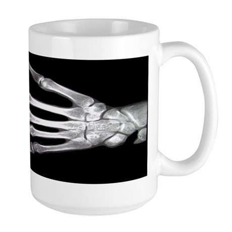 Hand X-Ray LARGE Mug (Radiology)
