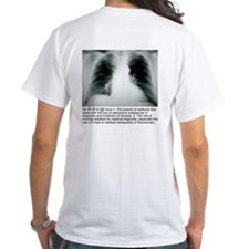 Radiology Definition T-Shirt