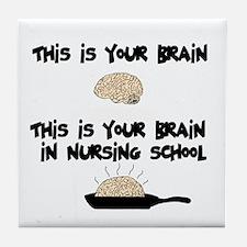 Fried Nursing Student Brain Tile Coaster