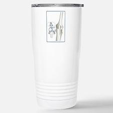 Knee replacement Travel Mug