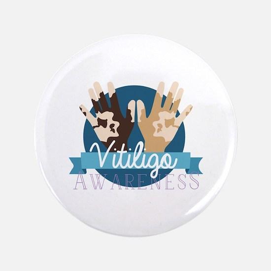 Vitiligo Awareness Button