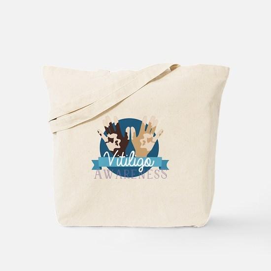 Vitiligo Awareness Tote Bag