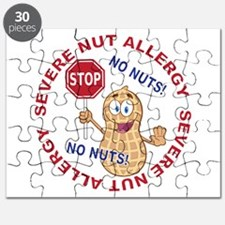 Severe Nut Allergy Puzzle