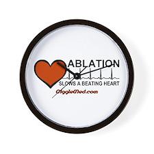 Ablation Slows Beating HeartT Wall Clock