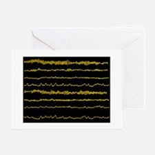 Normal EEG read out of the brains alpha waves - Gr