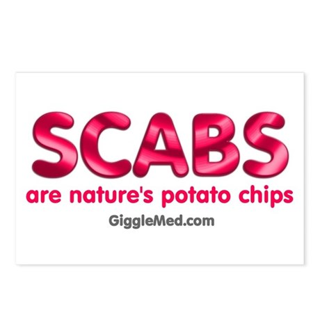 Scabs Natures Potato Chips Postcards (Package of 8