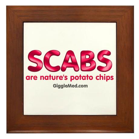 Scabs Natures Potato Chips Framed Tile