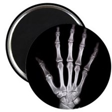 Hand X Ray Magnet