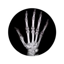 """Hand X Ray 3.5"""" Button"""
