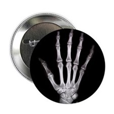 "Hand X Ray 2.25"" Button"