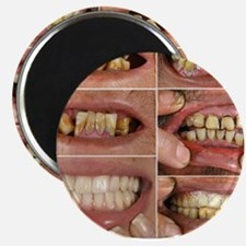 Bad Teeth? Magnet