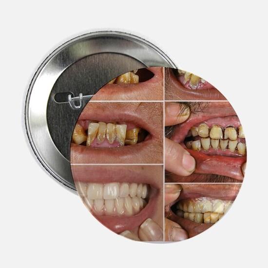 "Bad Teeth? 2.25"" Button"