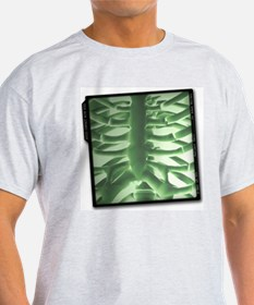 Chest x-ray T-Shirt