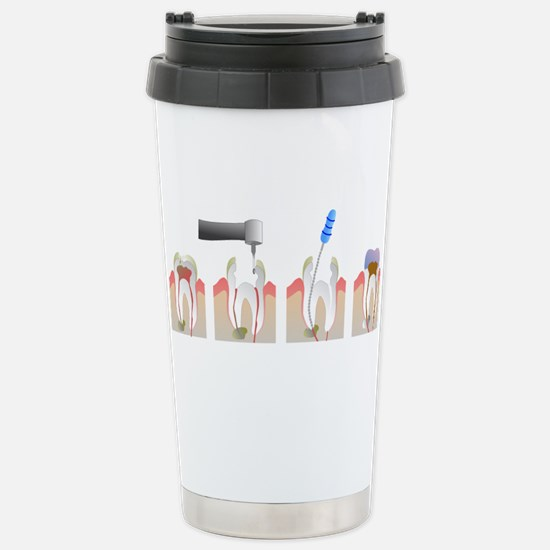 Root Canal Stainless Steel Travel Mug