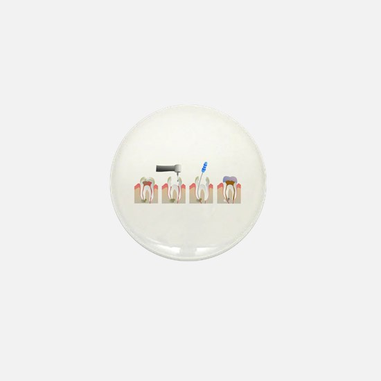 Root Canal Mini Button