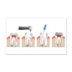 Root Canal Wall Decal