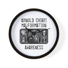 Arnold Chiari Malformation Wall Clock