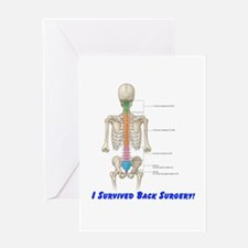 I Survived Back Surgery! Greeting Card