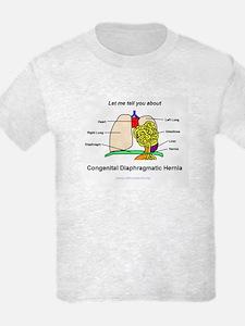 CDH Anatomy Lesson T-Shirt