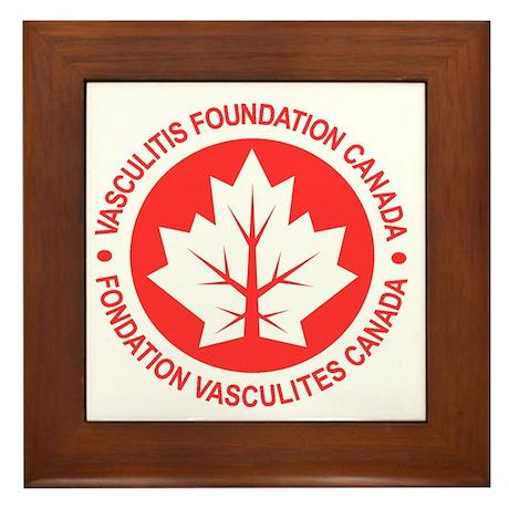 Vasculitis Framed Tile