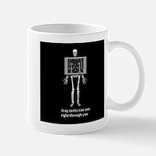 reverse xray4 Mugs