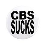 CBS Sucks 3.5