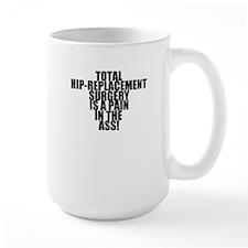 Total Hip Replacement Surgery Ceramic Mugs